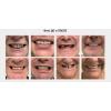 Восстановления зубного ряда,  все на 4 имплантах