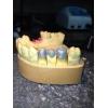Зуботехнические литейные работы